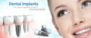 dental-implants-offer-768x319